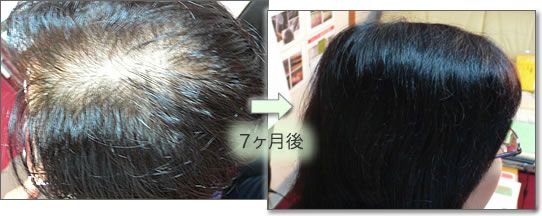 女性薄毛の症例 女性薄毛の改善例 薄毛の改善と正しい育毛 体質の改善 頭皮のタイプ 頭皮チェック